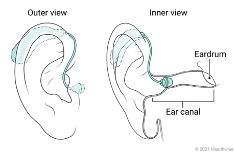 Outer and inner view of a mini BTE hearing aid placed in ear.