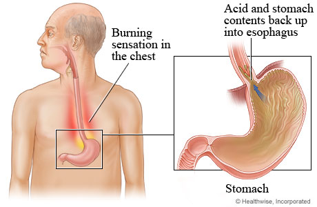 Location of stomach, with detail of acid backing up into esophagus