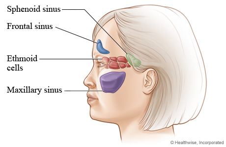 Where nasal sinus cavities are located (side view)