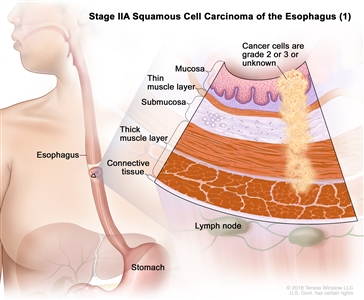Stage IIA squamous cell carcinoma of the esophagus (1); drawing shows the esophagus and stomach. An inset shows grade 2 or 3 cancer cells or cancer cells of an unknown grade in the mucosa layer, thin muscle layer, submucosa layer, and thick muscle layer of the esophagus wall. Also shown are the connective tissue layer of the esophagus wall and the lymph nodes.
