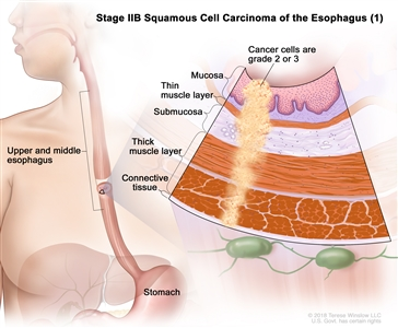 Stage IIB squamous cell carcinoma of the esophagus (1); drawing shows the upper and middle parts of the esophagus and the stomach. An inset shows grade 2 or 3 cancer cells in the mucosa layer, thin muscle layer, submucosa layer, thick muscle layer, and connective tissue layer of the upper and middle esophagus wall.
