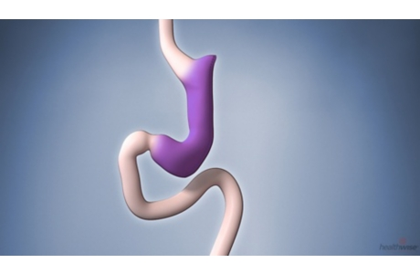 Gastric Sleeve Surgery