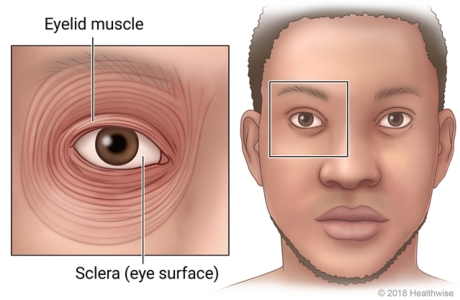An eye, showing the muscles around it and the cornea, or eye surface