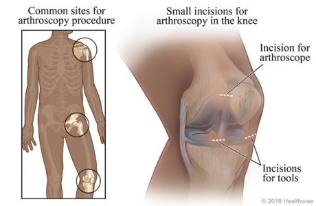 Common sites for arthroscopy, with detail of incision points in knee joint