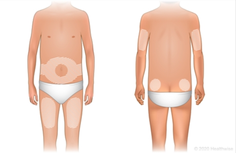 Locations on the body for giving insulin shots