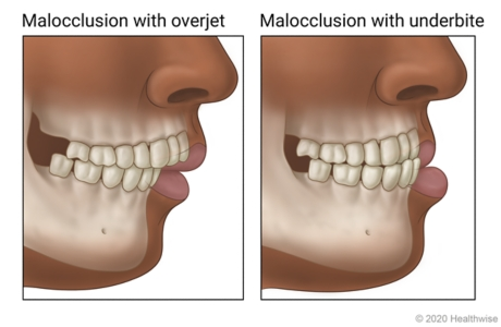 Jaws showing malocclusion, one showing an overjet and one an underbite