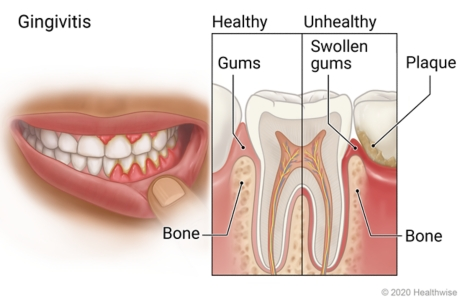 Mouth with swollen gums, with detail of healthy tooth and gums and of unhealthy tooth showing plaque on tooth and swollen gums.
