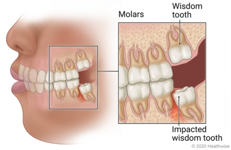 Wisdom teeth in back of left side of mouth, with close-up of six molars including wisdom tooth under gum and impacted wisdom tooth causing inflamed tissue.