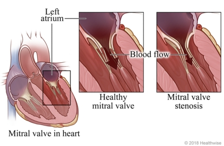 Location of mitral valve in heart, with detail of healthy mitral valve and one with stenosis