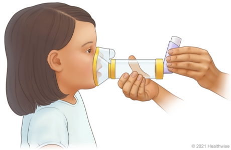 Adult placing mask of spacer over child's mouth and nose.