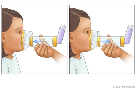 Adult holding mask spacer over child's nose and mouth, while child breathes in medicine from spacer.