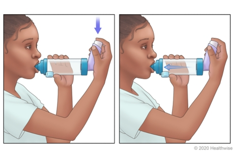 Child pressing down on inhaler and breathing in medicine.