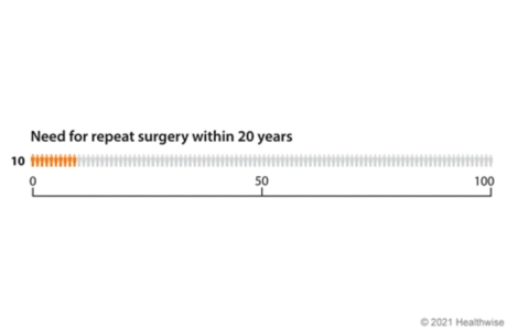 Graph with 100 figures, showing 10 figures colored to represent how many need repeat knee replacement surgery within 20 years.