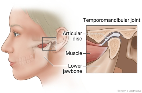 Temporomandibular joint just in front of ear, with detail of joint showing lower jawbone, muscle, and articular disc.