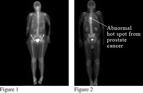 Image of a bone scan showing prostate cancer