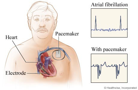 Location of pacemaker in chest, with before-and-after EKG results