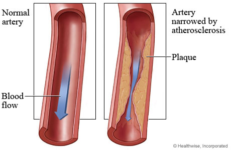 Normal artery and blood flow and an artery narrowed by atherosclerosis