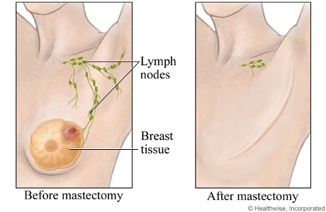 Before and after a mastectomy