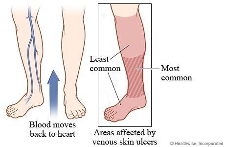 Leg and foot areas affected by venous skin ulcers