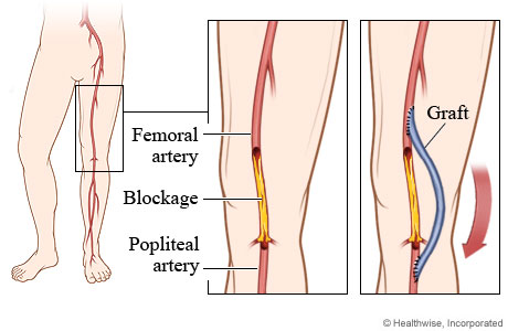 Blocked artery and position of graft in femoropopliteal bypass