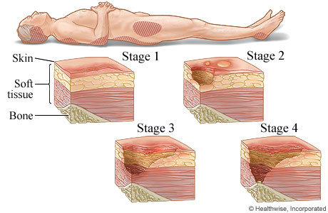 The four stages of pressure injuries
