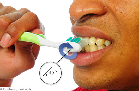 Holding a toothbrush at a 45-degree angle