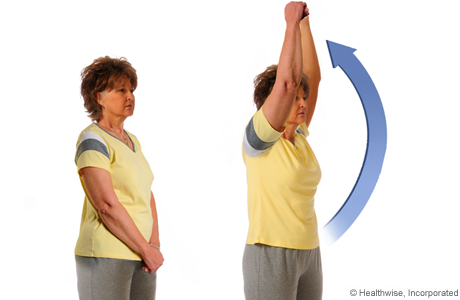 How to do the overhead-reach exercise