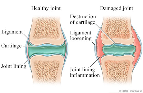 Healthy joint compared to damaged joint