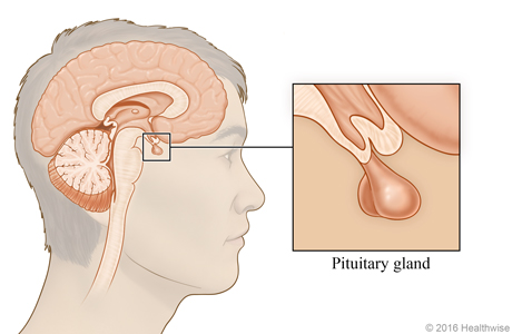 Location of pituitary gland beneath the brain, with close-up of the gland