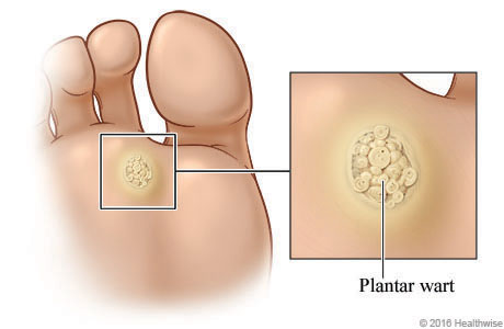 Plantar wart on bottom of foot below toes with close-up of raised and bumpy wart.