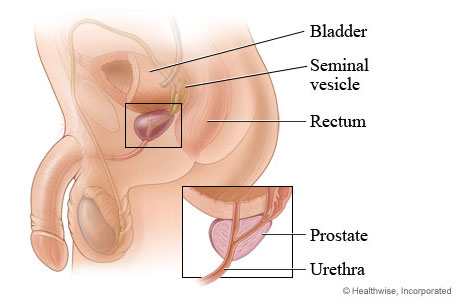 Prostate and its location in the body