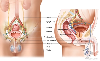 Anatomy of the male reproductive and urinary systems; drawing shows front and side views of ureters, lymph nodes, rectum, bladder, prostate gland, vas deferens, urethra, penis, testicles, seminal vesicle, and ejaculatory duct.