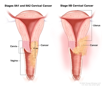 Stage II cervical cancer; drawing shows two cross-sections of the uterus, cervix, and vagina. The drawing on the left shows stages IIA1 and IIA2 cancer in the cervix that is 4 cm and has spread to the upper two-thirds of the vagina. The drawing on the right shows stage IIB cancer that has spread from the cervix to the tissue around the uterus.