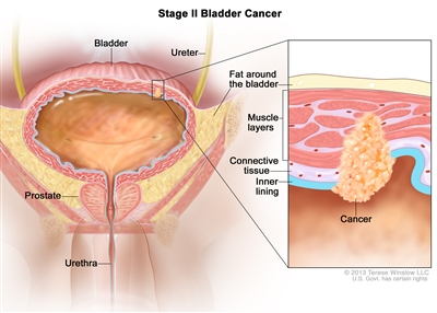 Stage II bladder cancer; drawing shows the bladder, ureter, prostate, and urethra. Inset shows cancer in the inner lining of the bladder, the layer of connective tissue, and the muscle layers. Also shown is the layer of fat around the bladder.