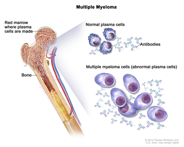 Multiple myeloma; drawing shows normal plasma cells, multiple myeloma cells (abnormal plasma cells), and antibodies. Also shown is red marrow inside bone, where plasma cells are made.