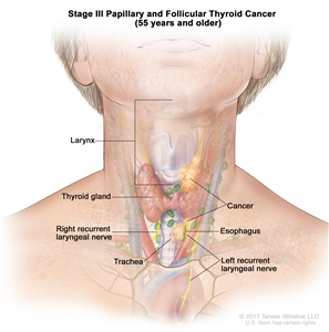 Stage III papillary and follicular thyroid cancer in patients 55 years and older; drawing shows cancer that has spread from the thyroid gland to the esophagus, the trachea, the larynx, and the left recurrent laryngeal nerve. Also shown is the right recurrent laryngeal nerve.