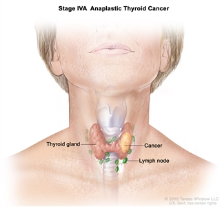 Stage IVA anaplastic thyroid cancer; drawing shows cancer in the thyroid gland. The lymph nodes are also shown.