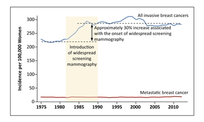 Chart showing the temporal relationship between the introduction of screening mammography and increased incidence of invasive breast cancer.
