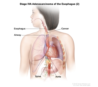 Stage IVA adenocarcinoma of the esophagus (2); drawing shows cancer in the esophagus, airway, aorta, and spine.