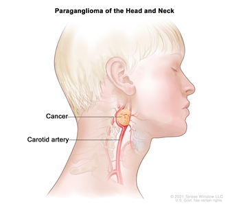 Paraganglioma of the head and neck; drawing shows a cancerous tumor near the carotid artery in the head and neck.
