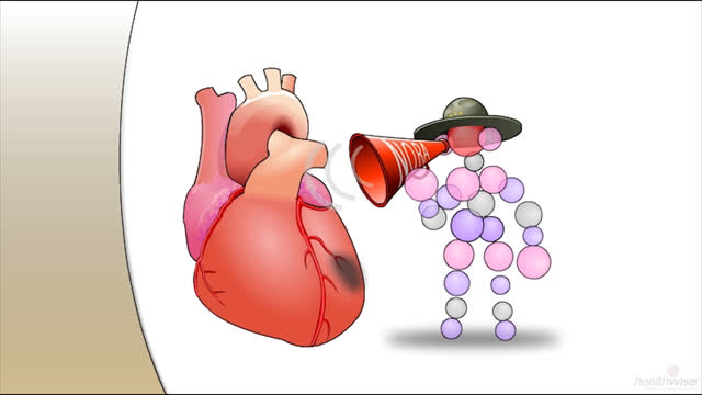 Beta-Blockers After a Heart Attack