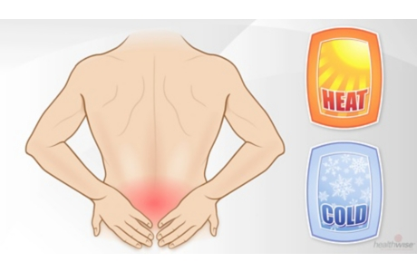 Heat or Ice for Low Back Pain