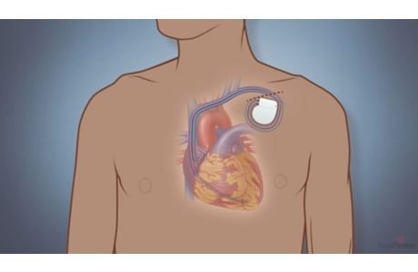 Pacemaker Placement
