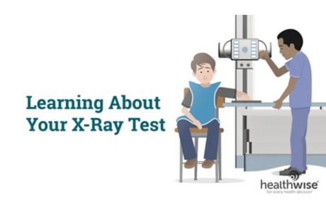 Learning About Your X-Ray Test