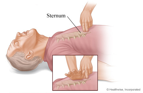 Picture of where to place hands on sternum for chest compressions