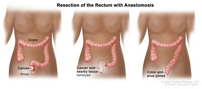 Three-panel drawing showing rectal cancer surgery with anastomosis; first panel shows area of rectum with cancer, middle panel shows cancer and nearby tissue removed, last panel shows the colon and anus joined.
