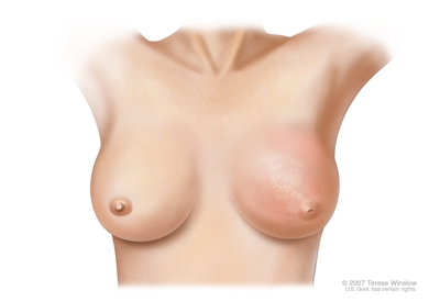 Inflammatory breast cancer of the left breast with redness, peau d'orange, and inverted nipple.