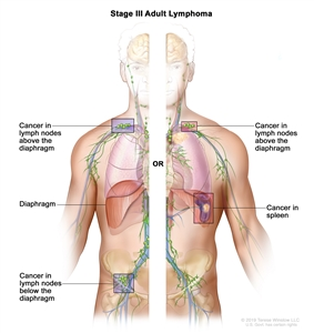 Stage III adult non-Hodgkin lymphoma; drawing shows cancer in lymph node groups above and below the diaphragm, in the left lung, and in the spleen. An inset shows a lymph node with a lymph vessel, an artery, and a vein. Lymphoma cells containing cancer are shown in the lymph node.