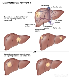 Liver PRETEXT Stage 2; drawing shows five livers. Dotted lines divide each liver into four vertical sectors that are about the same size. In the first liver, cancer is shown in the two sectors on the left. In the second liver, cancer is shown in the two sectors on the right. In the third liver, cancer is shown in the far left and far right sectors. In the fourth liver, cancer is shown in the second sector from the left. In the fifth liver, cancer is shown in the second sector from the right.