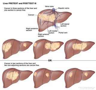 Liver PRETEXT Stage 3; drawing shows seven livers. Dotted lines divide each liver into four vertical sectors that are about the same size. In the first liver, cancer is shown in three sectors on the left. In the second liver, cancer is shown in the two sectors on the left and the sector on the far right. In the third liver, cancer is shown in the sector on the far left and the two sectors on the right. In the fourth liver, cancer is shown in three sectors on the right. In the fifth liver, cancer is shown in the two middle sectors. In the sixth liver, cancer is shown in the sector on the far left and the second sector from the right. In the seventh liver, cancer is shown in the sector on the far right and the second sector from the left.